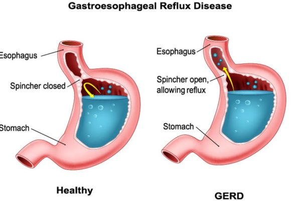 Symptoms and Treatment Options for GERD