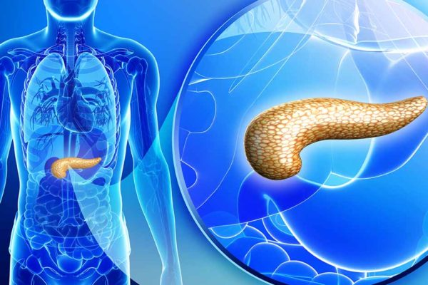 Pancreatitis – what is it, and how is it treated?