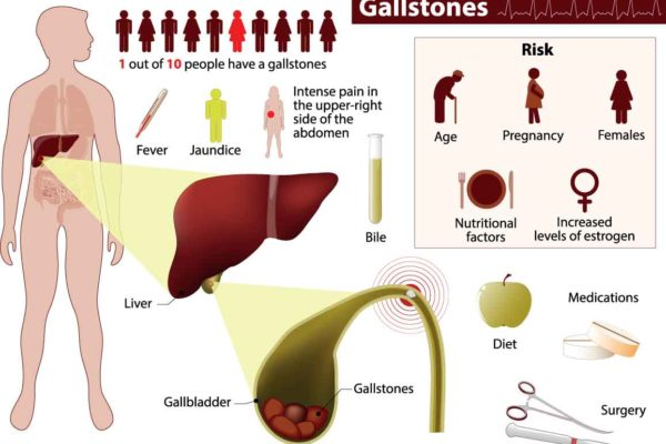 Everything You Ever Needed to Know About Gallstones
